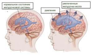 hydrocephalus-fnl_11140875